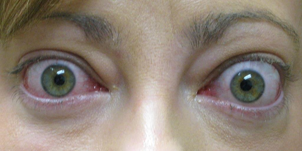 Treatment Of Thyroid Eye Disease Graves Disease Arte Facial